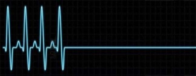 electrocardiogramme-plat1